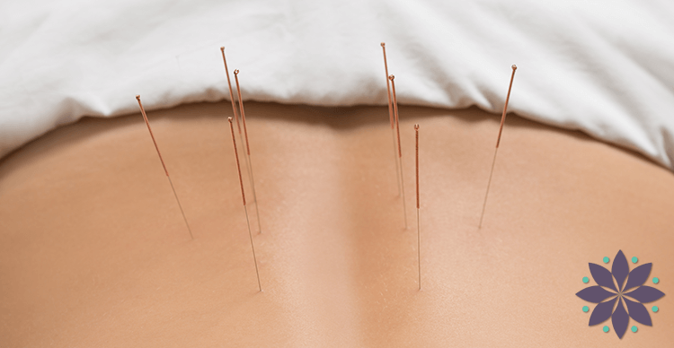 Annapolis Acupuncture Services